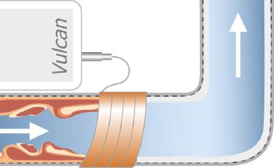טיפול בחלודה עם VULCAN